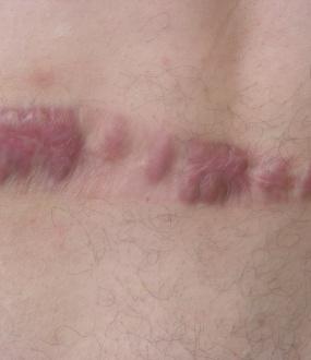 Tretiranje keloidnih ožiljaka