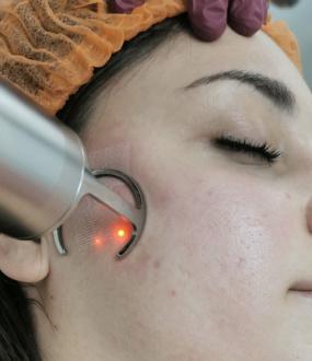 Tretmani FRAXEL laserom